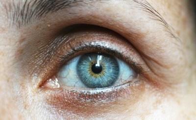 Derrame ocular, sus causas y efectos