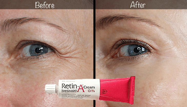 5-Year Retin-A Results ~ Before & After for Wrinkles ...