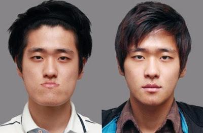 9 Foto Pria Korea Setelah Operasi Plastik Ini Bikin Pangling!