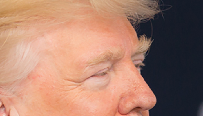 Donald Trump's eyebrows