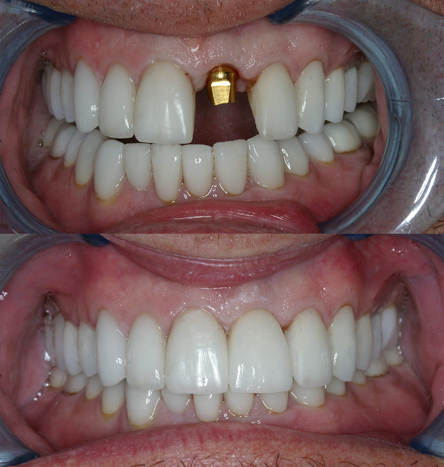 Before Amp After Photos Cosmetic Dentists Of Houston