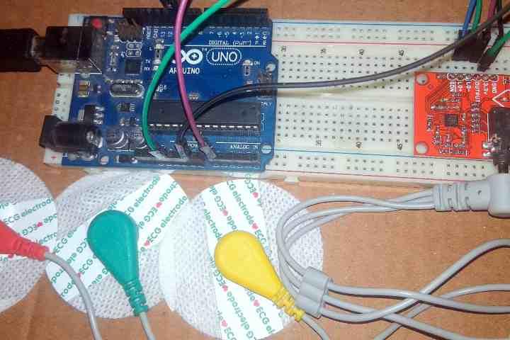 ECG Monitoring with AD8232 ECG Sensor & Arduino with ECG Graph