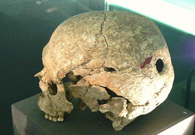 holes in the skull