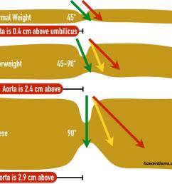 adult umbilicu diagram [ 1394 x 1268 Pixel ]