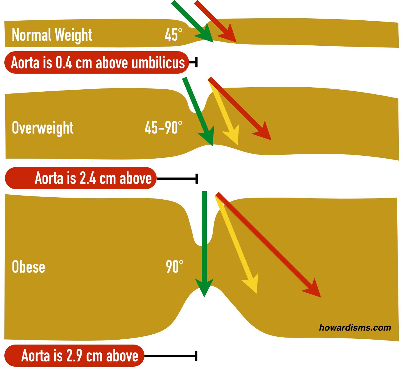 hight resolution of adult umbilicu diagram