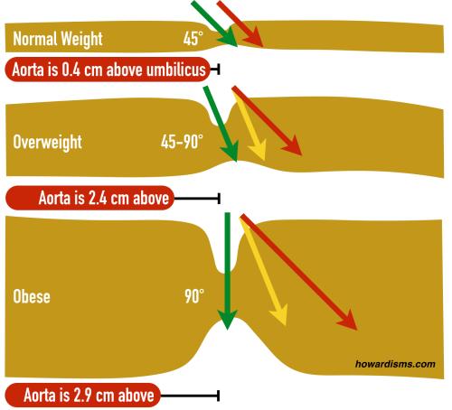 small resolution of adult umbilicu diagram