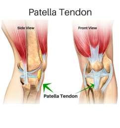patellar tendon tears [ 1024 x 768 Pixel ]
