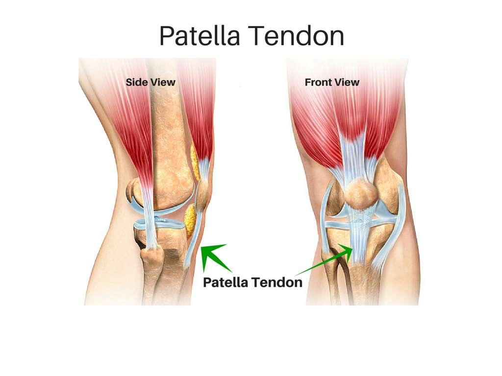 hight resolution of patellar tendon tears