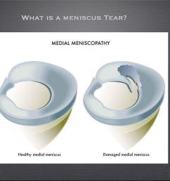 posterior horn medial meniscus tear [ 1024 x 768 Pixel ]