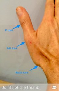 Thumb Injuries In The Athlete Howard J Luks MD