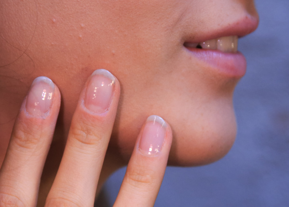 How to Strengthen Weak Nails Naturally