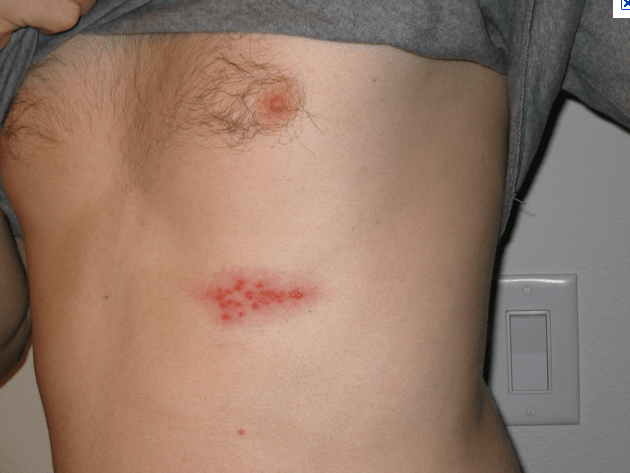 How To See If Shingles Is Cured? 2