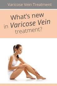 Whats new in varicose vein treatment