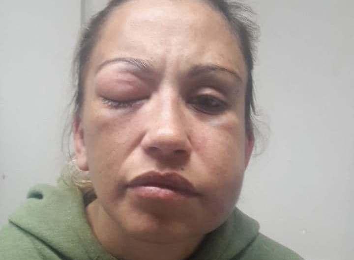 Mercedina denuncia a su ex pareja por violencia de género