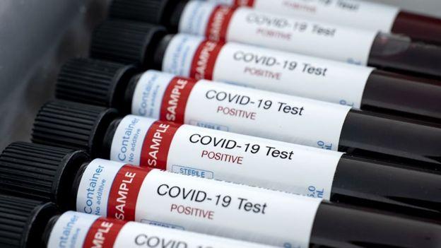 Coronavirus en Luján: 28 nuevos casos positivos y otra persona fallecida
