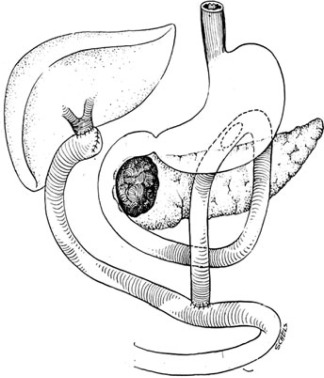 Surgical bypass vs. endoscopic stenting for pancreatic