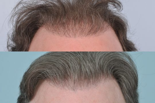 hair transplant repair case study