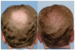 What causes hair loss in men