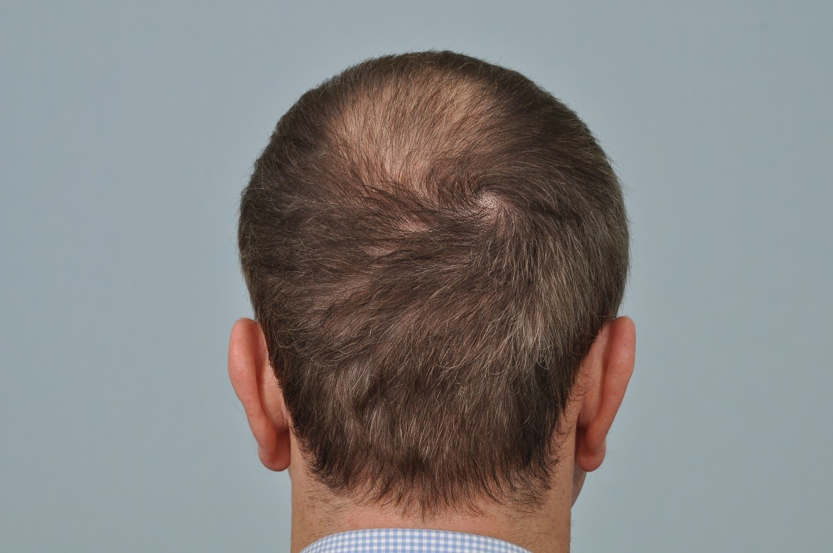 Scarring Following Hair Transplant Surgery Hrbr Blackrock