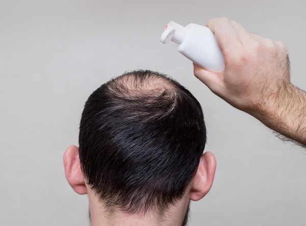 shampoo for thinning hair - does it work?