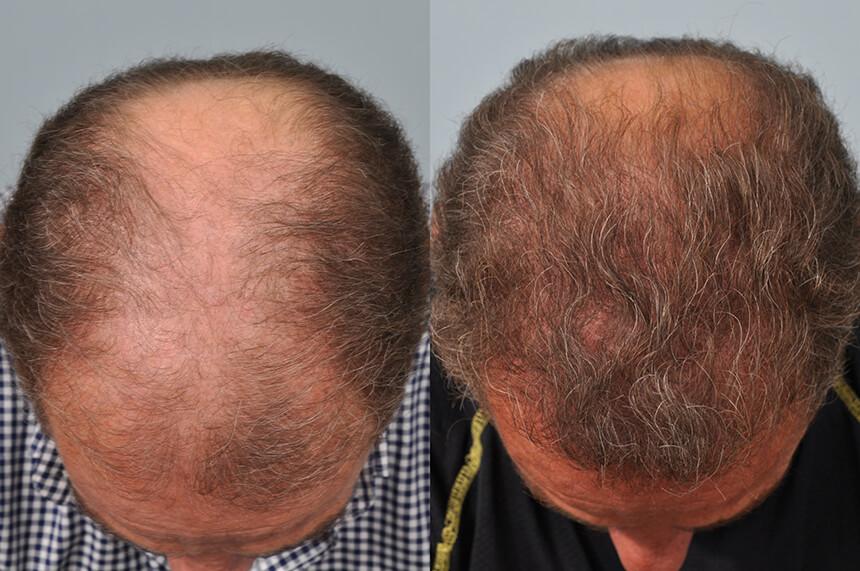 Sam Khalaf hair transplant one year later - crown