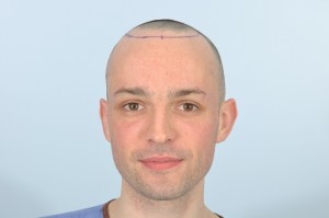James Kavanagh Hair Transplant at HRBR