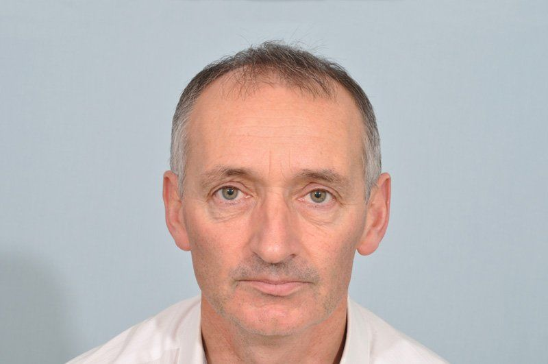 Before-Pat Nevin