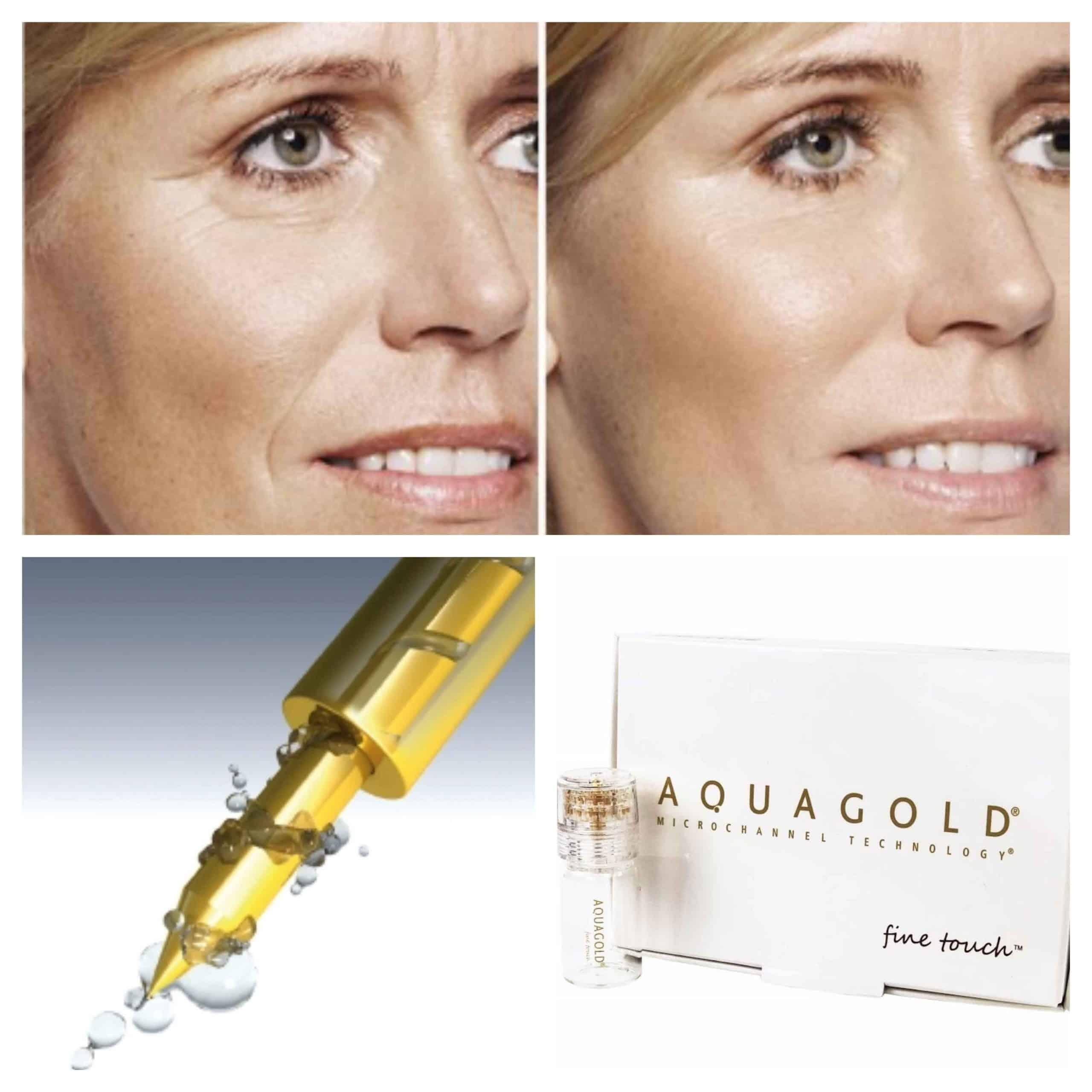 Aquagold facial treatments in Richmond - Richmond's advanced skin treatment