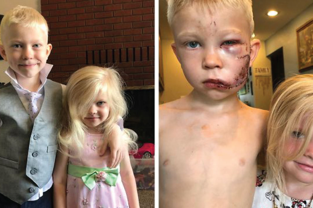 6-Year-Old Saves Younger Sister From Dog Attack