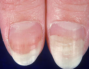 Is It Nail Psoriasis Or A Fungus
