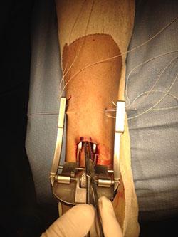 Minimally-Invasive Surgical Repair for Achilles Tendon ...
