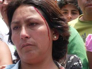 Profesora herida en protesta