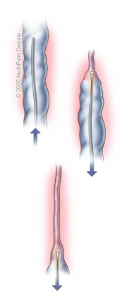 Radiofrequency Ablation of Saphenous Vein
