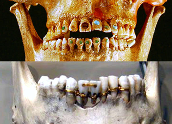 Gold bridges and jewel-adorned teeth were performed in ancient dentistry.
