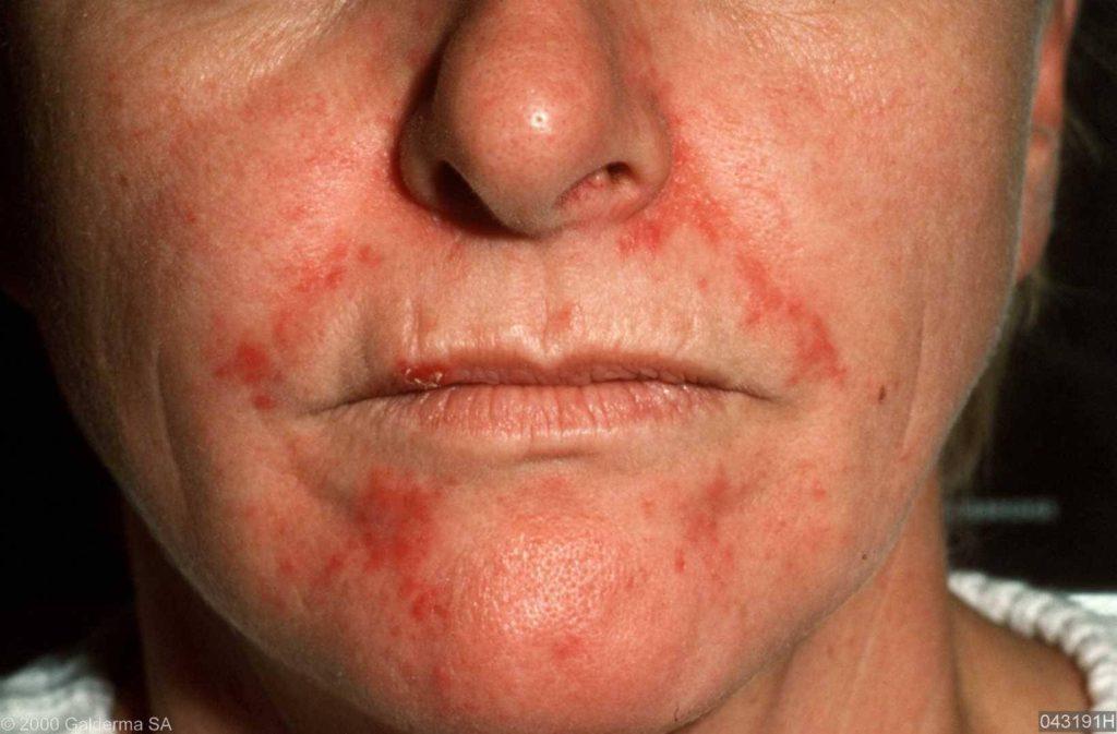 Afbeeldingsresultaat voor Seborrhoïsch dermatitis