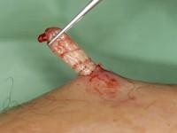 Human botfly, dermatobia hominis larven (klik op foto voor vergroting) [bron: www.hardinmd.lib.uiowa.edu]