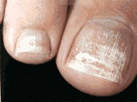 White Patches On Toenails