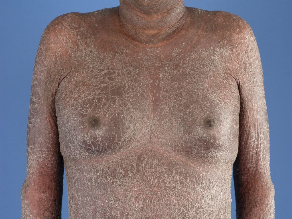 Effortless Psoriasis Systems For 2012