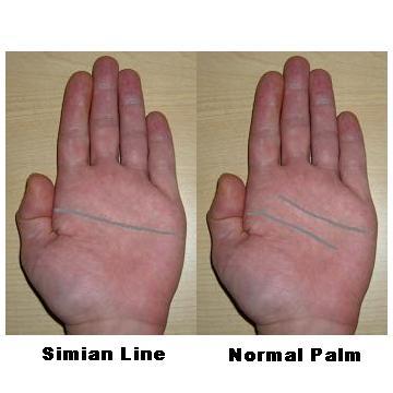 Simian versus Normal