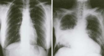Not mine, but an x-ray of the lungs with pneumonia...