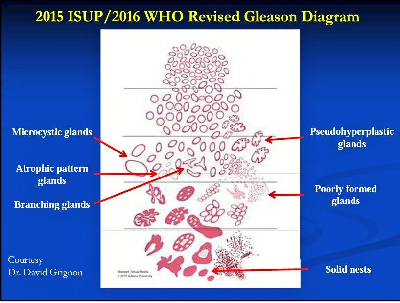 schematic diagram definition 2001 volkswagen beetle parts gleason pattern 4 - humpath.com human pathology