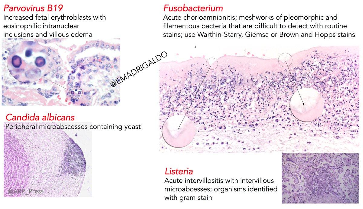 Placental Infections Human Pathology