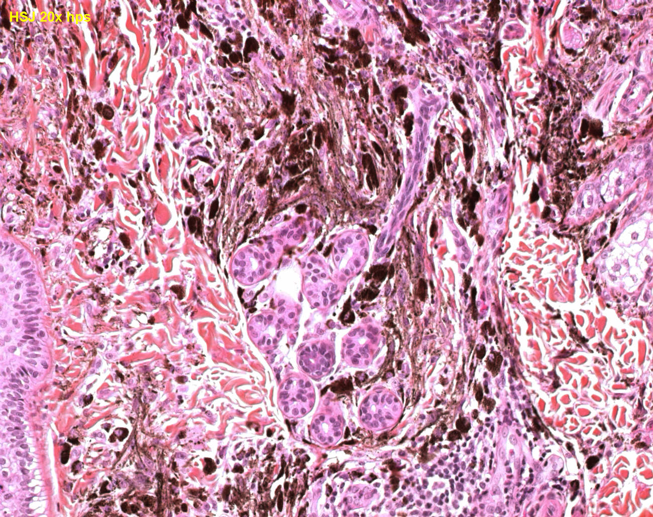 Tumor Spindle Cell Tumor