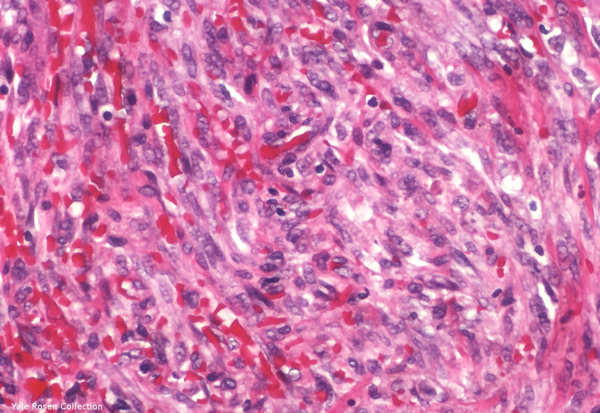 Kaposi sarcoma  Humpathcom  Human pathology
