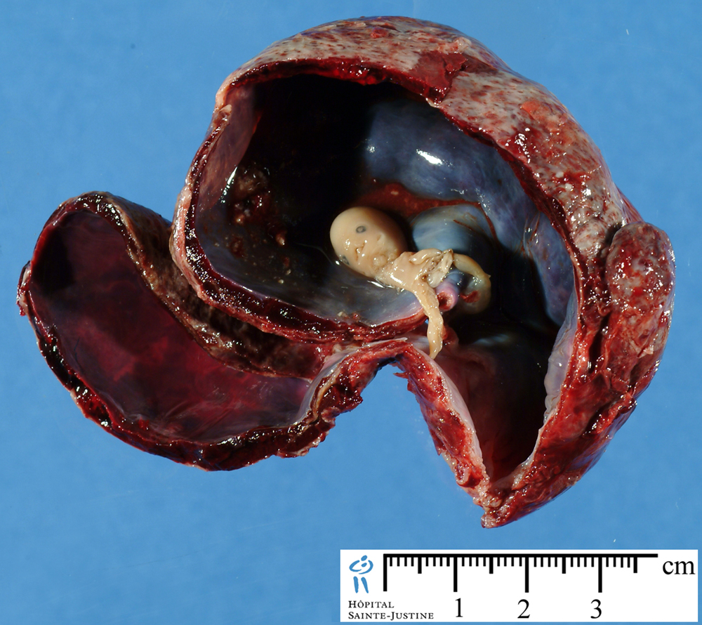 Embryo Humpath Com Human Pathology