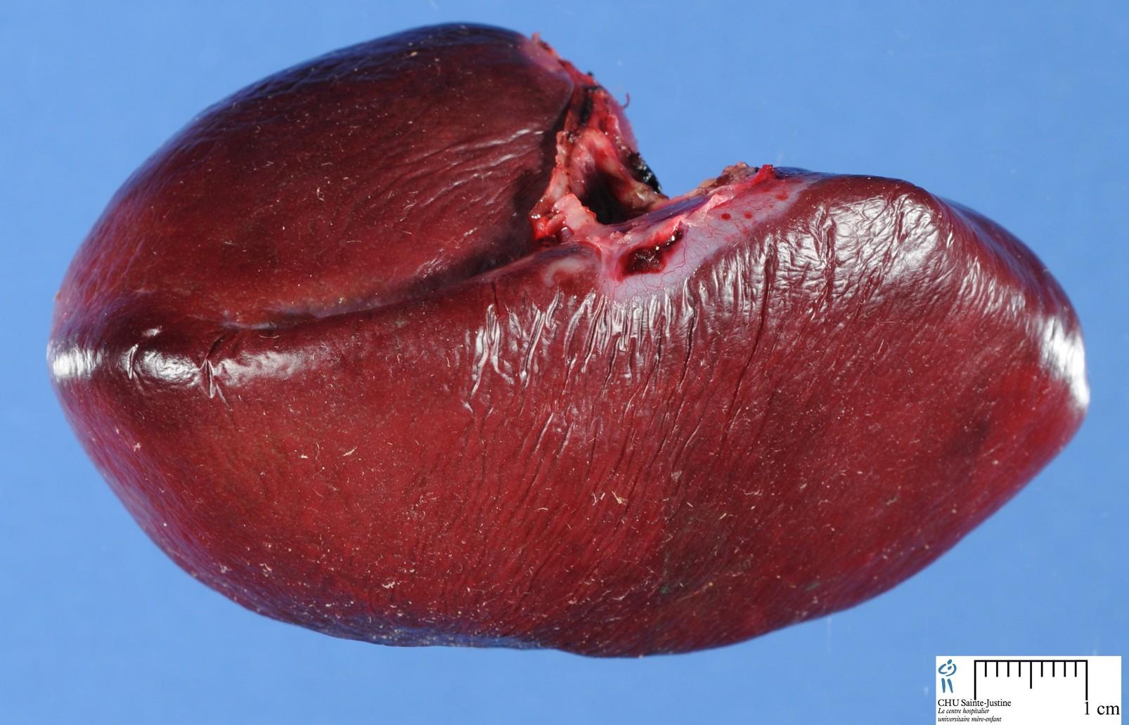 liver and spleen diagram telephone wiring master socket smartproxyfo pancreas location anatomy human body get free image