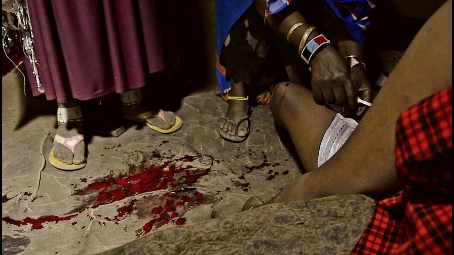 کم عمر لڑکیوں کے جنسی اعضاء کاٹنے کی بہیمانہ رسم – ایف جی ایم