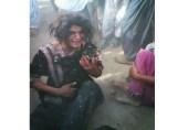 پھول سی بیٹی جو کوئلہ بن گئی…