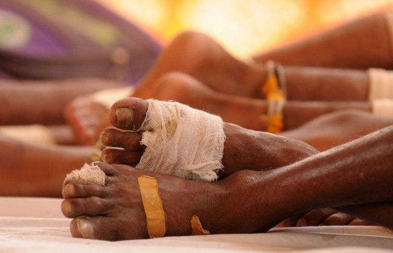 Bruised feet of Kawariyas wrapped in bandages seen as they rest during the journey on 7 August 2018 in Gurugram, India.