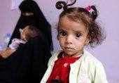یمنیوں کو بھوک سے نجات پانے کی امید، لیکن خدشات برقرار
